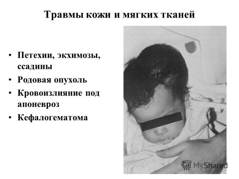 Травмы кожи и мягких тканей Петехии, экхимозы, ссадины Родовая опухоль Кровоизлияние под апоневроз Кефалогематома