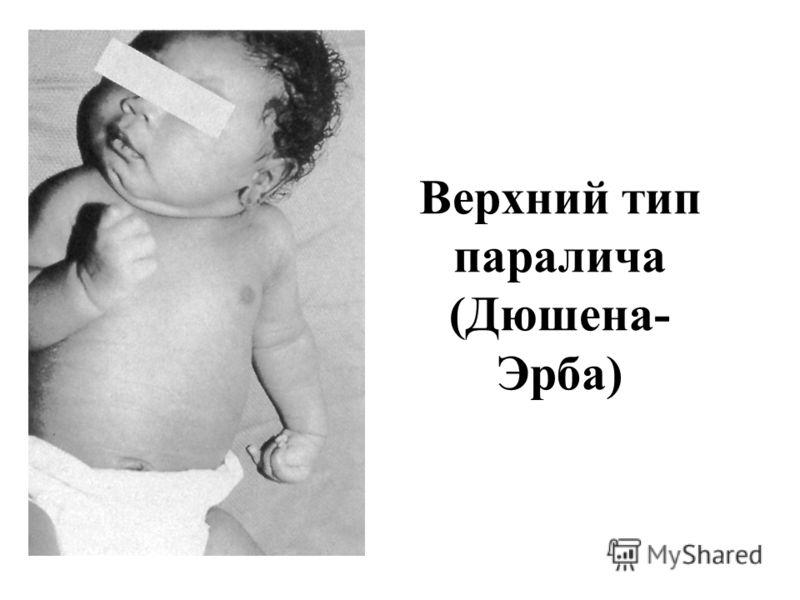 Паралич Клюмпке фото