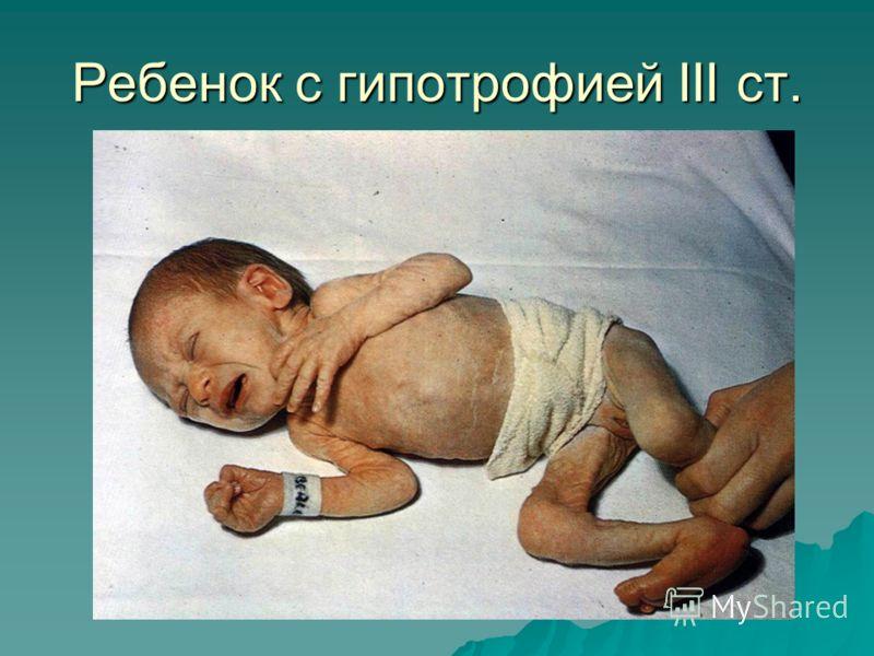 Ребенок с гипотрофией III ст.