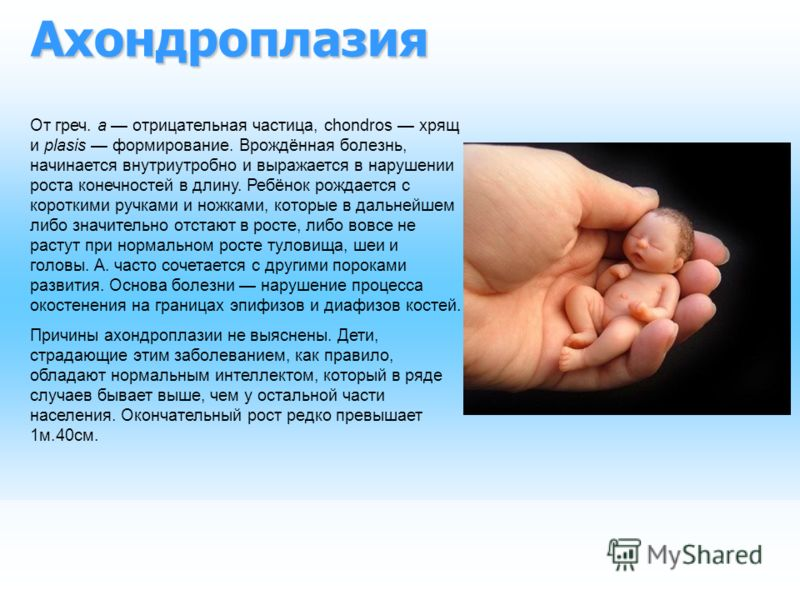 Ахондроплазия От греч. а отрицательная частица, chondros хрящ и plasis формирование. Врождённая болезнь, начинается внутриутробно и выражается в нарушении роста конечностей в длину. Ребёнок рождается с короткими ручками и ножками, которые в дальнейше