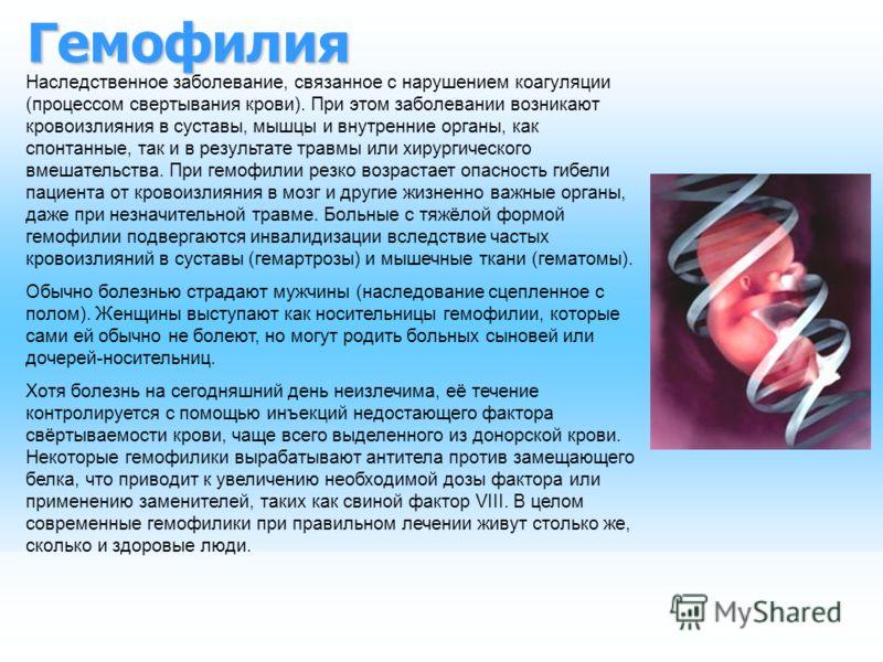 Гемофилия Наследственное заболевание, связанное с нарушением коагуляции (процессом свертывания крови). При этом заболевании возникают кровоизлияния в суставы, мышцы и внутренние органы, как спонтанные, так и в результате травмы или хирургического вме