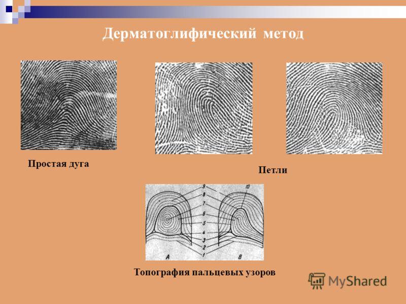 Простая дуга Петли Топография пальцевых узоров Дерматоглифический метод