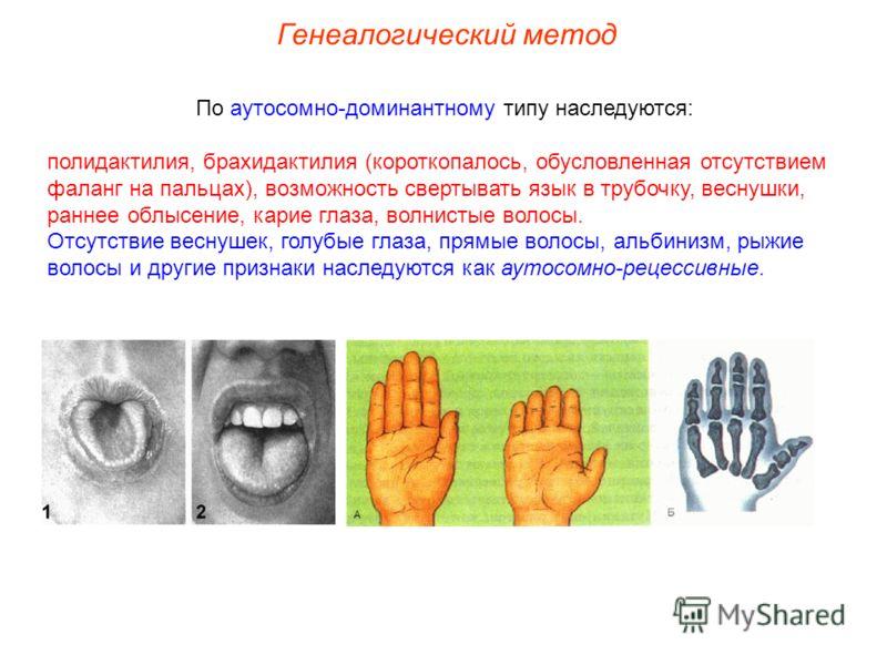 По аутосомно-доминантному типу наследуются: полидактилия, брахидактилия (короткопалось, обусловленная отсутствием фаланг на пальцах), возможность свертывать язык в трубочку, веснушки, раннее облысение, карие глаза, волнистые волосы. Отсутствие веснуш