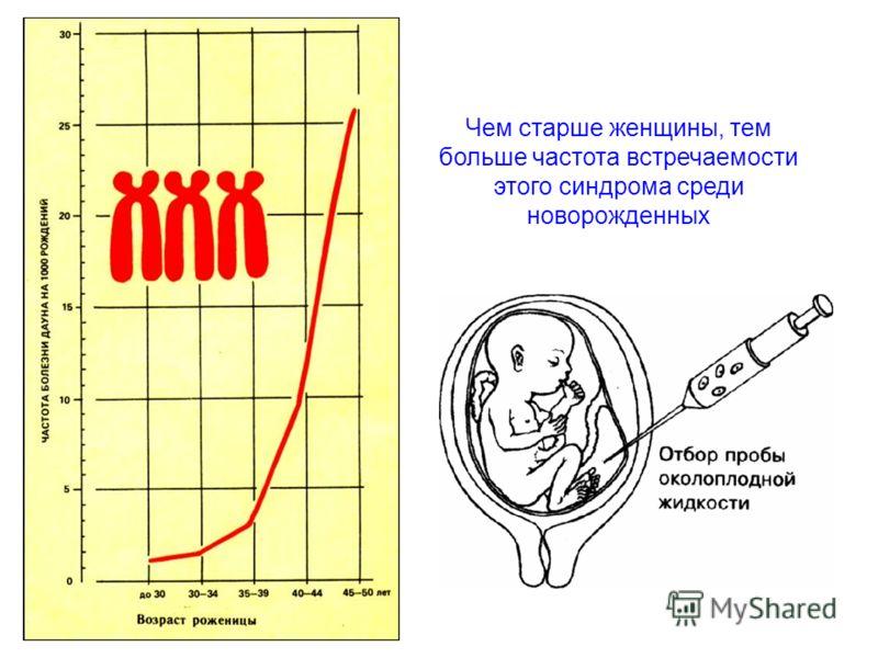 Чем старше женщины, тем больше частота встречаемости этого синдрома среди новорожденных