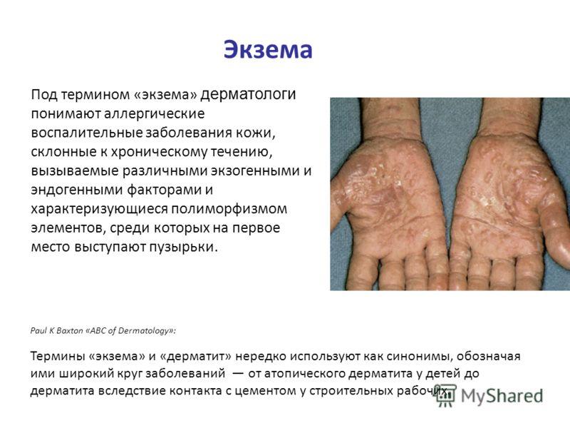 Экзема Под термином «экзема» дерматологи понимают аллергические воспалительные заболевания кожи, склонные к хроническому течению, вызываемые различными экзогенными и эндогенными факторами и характеризующиеся полиморфизмом элементов, среди которых на