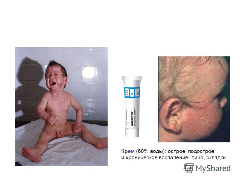 Крем (60% воды): острое, подострое и хроническое воспаление; лицо, складки.