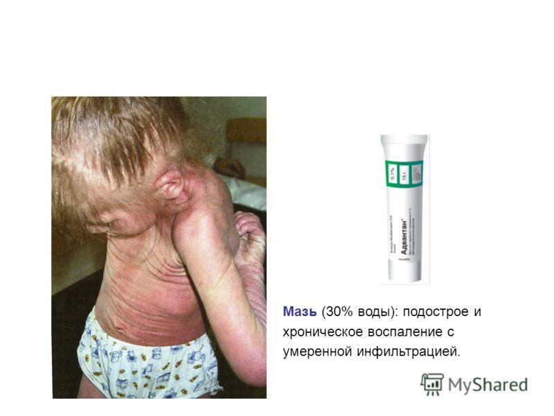 Мазь (30% воды): подострое и хроническое воспаление с умеренной инфильтрацией.
