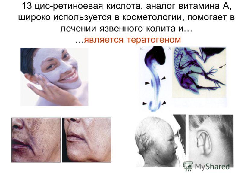 13 цис-ретиноевая кислота, аналог витамина А, широко используется в косметологии, помогает в лечении язвенного колита и… …является тератогеном