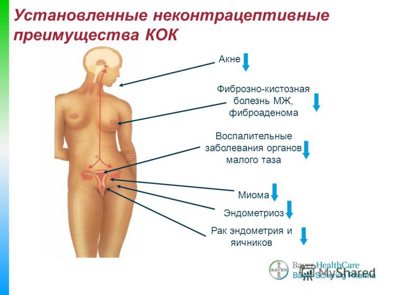 Aкне Фиброзно-кистозная болезнь МЖ, фиброаденома Воспалительные заболевания органов малого таза Миома Эндометриоз Рак эндометрия и яичников Установленные неконтрацептивные преимущества КОК