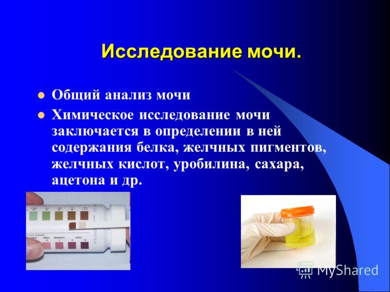 Исследование мочи. Общий анализ мочи Химическое исследование мочи заключается в определении в ней содержания белка, желчных пигментов, желчных кислот, уробилина, сахара, ацетона и др.