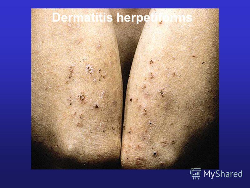 Dermatitis herpetiforms