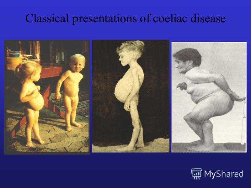 Classical presentations of coeliac disease