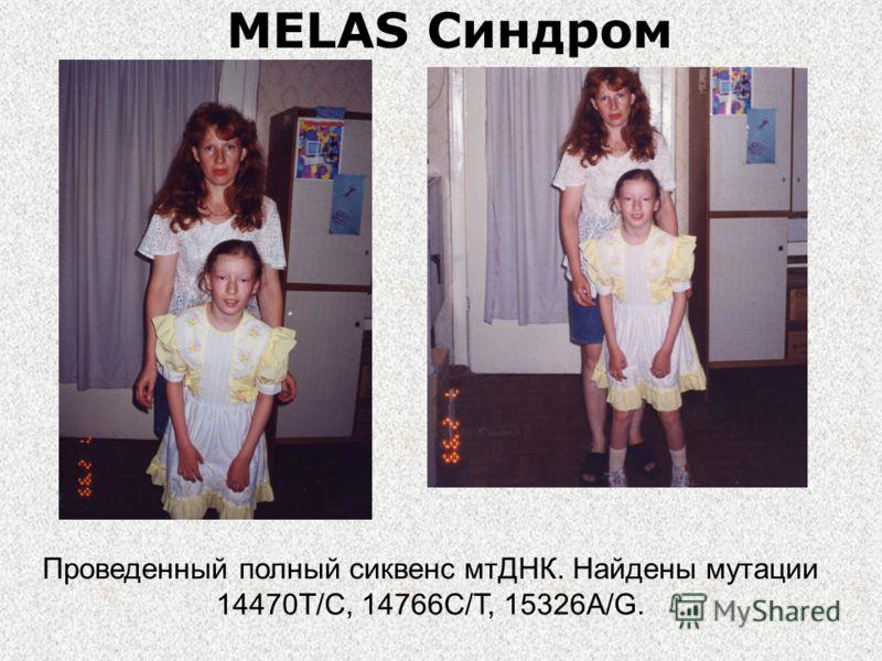 MELAS Синдром Проведенный полный сиквенс мтДНК. Найдены мутации 14470T/C, 14766C/T, 15326A/G.