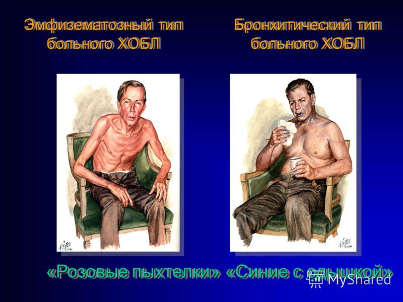 103 Эмфизематозный тип больного ХОБЛ Эмфизематозный тип больного ХОБЛ Бронхитический тип больного ХОБЛ Бронхитический тип больного ХОБЛ «Розовые пыхтелки» «Синие с одышкой»