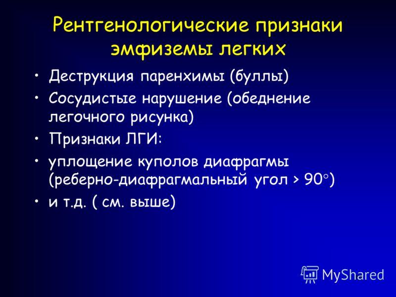 55 Рентгенологические признаки эмфиземы легких Деструкция паренхимы (буллы) Сосудистые нарушение (обеднение легочного рисунка) Признаки ЛГИ: уплощение куполов диафрагмы (реберно-диафрагмальный угол > 90°) и т.д. ( см. выше)