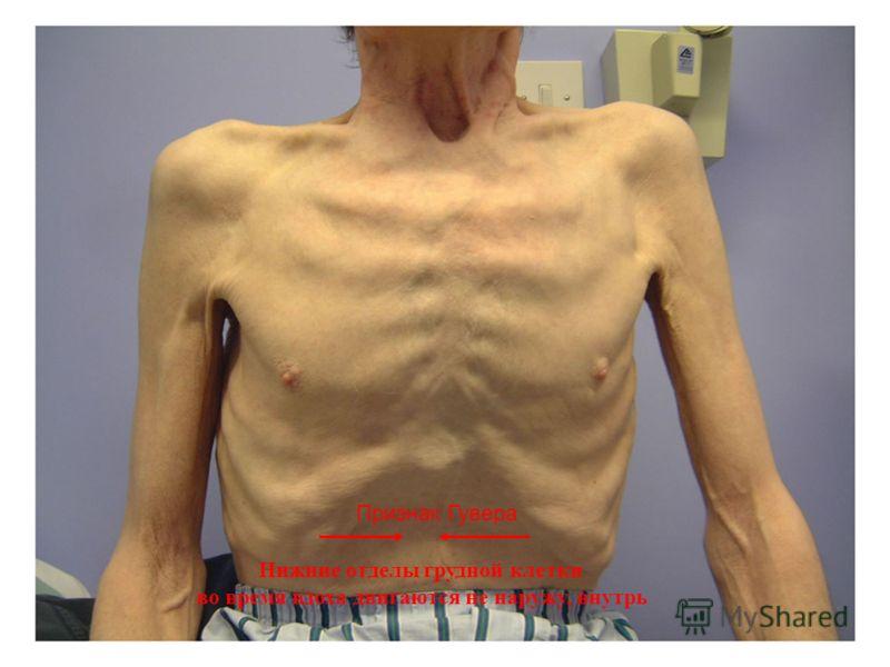 93 Признак Гувера Нижние отделы грудной клетки во время вдоха двигаются не наружу, внутрь