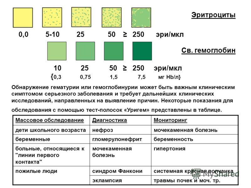 10 25 50 250 эри/мкл { 0,3 0,75 1,5 7,5 мг Hb/л} 0,0 5-10 25 50 250 эри/мкл Эритроциты Св. гемоглобин Обнаружение гематурии или гемоглобинурии может быть важным клиническим симптомом серьезного заболевания и требует дальнейших клинических исследовани