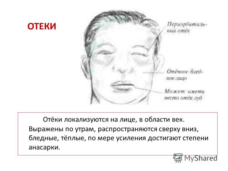 ОТЕКИ Отёки локализуются на лице, в области век. Выражены по утрам, распространяются сверху вниз, бледные, тёплые, по мере усиления достигают степени анасарки.