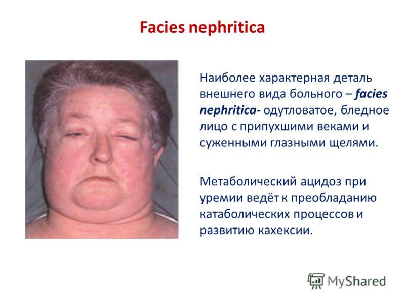 Facies nephritica Наиболее характерная деталь внешнего вида больного – facies nephritica- одутловатое, бледное лицо с припухшими веками и суженными глазными щелями. Метаболический ацидоз при уремии ведёт к преобладанию катаболических процессов и разв