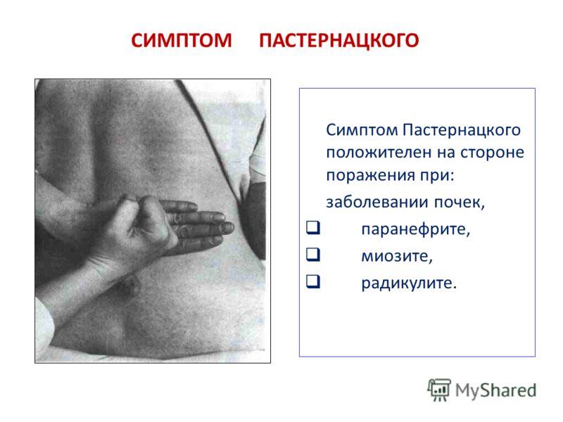СИМПТОМ ПАСТЕРНАЦКОГО Симптом Пастернацкого положителен на стороне поражения при: заболевании почек, паранефрите, миозите, радикулите.