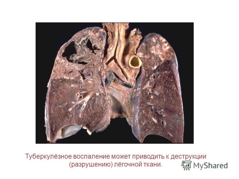 Туберкулёзное воспаление может приводить к деструкции (разрушению) лёгочной ткани.
