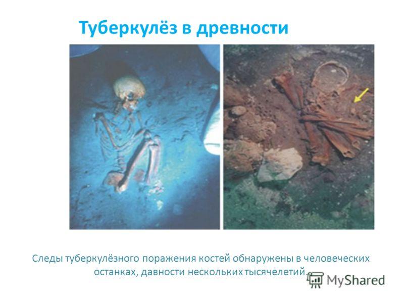 Туберкулёз в древности Следы туберкулёзного поражения костей обнаружены в человеческих останках, давности нескольких тысячелетий.