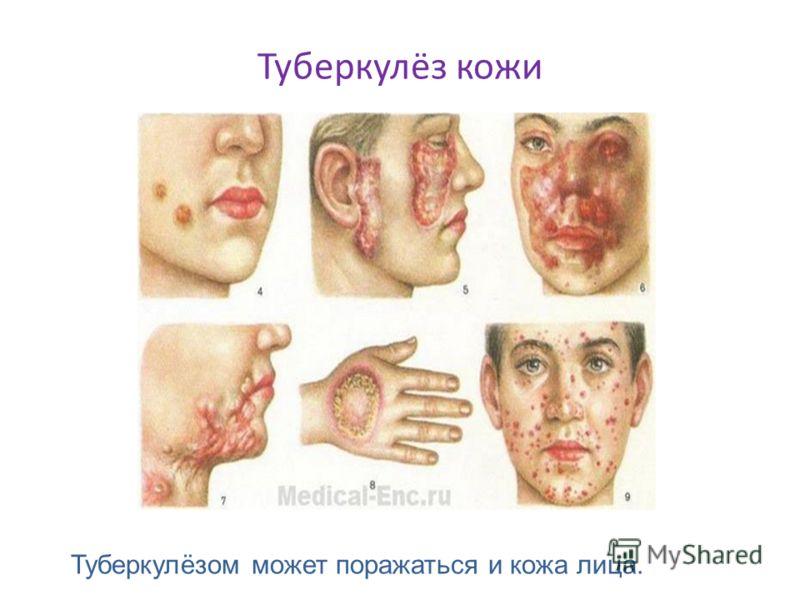 Туберкулёз кожи Туберкулёзом может поражаться и кожа лица.