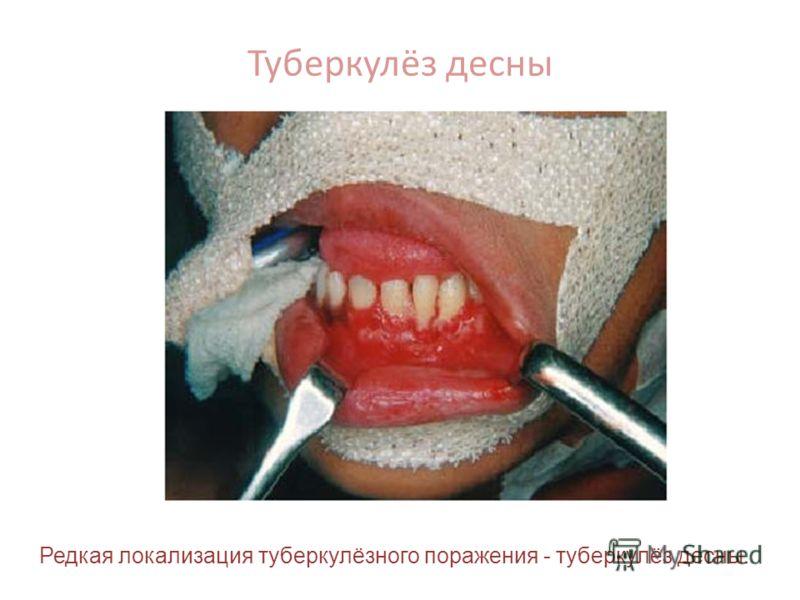Туберкулёз десны Редкая локализация туберкулёзного поражения - туберкулёз десны.