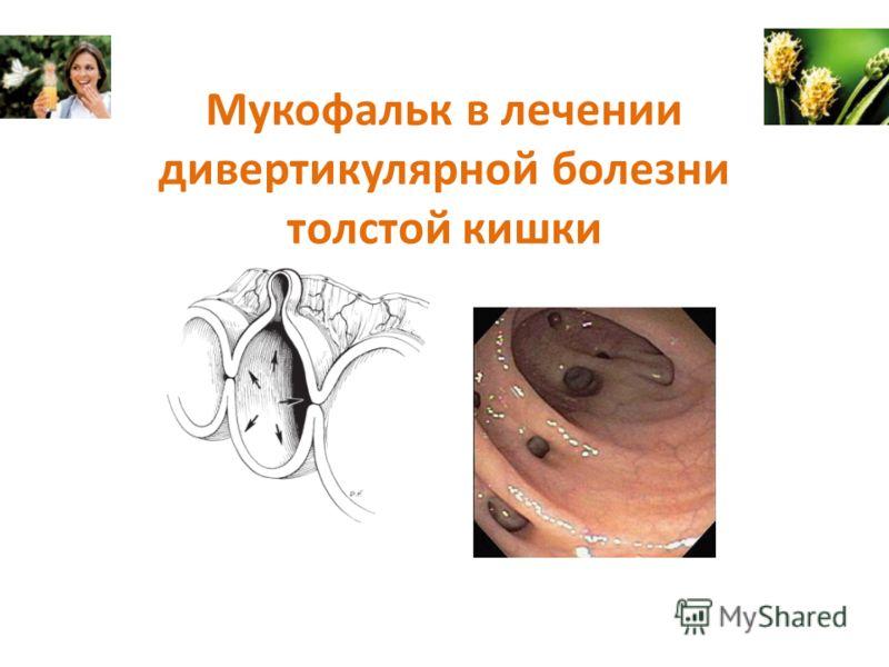 Мукофальк в лечении дивертикулярной болезни толстой кишки