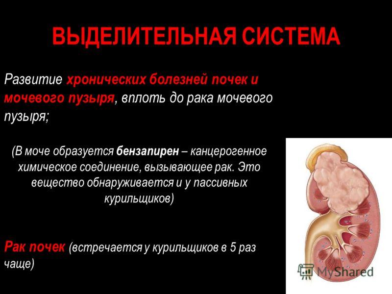 Заболевания почек цистит