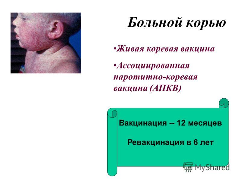 Больной корью Живая коревая вакцина Ассоциированная паротитно-коревая вакцина (АПКВ) Вакцинация -- 12 месяцев Ревакцинация в 6 лет