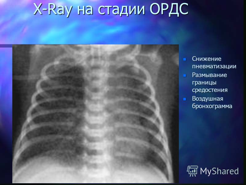 X-Ray на стадии ОРДС n Снижение пневматизации n Размывание границы средостения n Воздушная бронхограмма