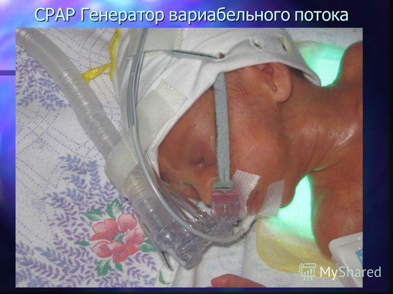 СPAP Генератор вариабельного потока