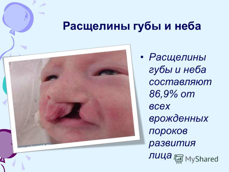 Расщелины губы и неба составляют 86,9% от всех врожденных пороков развития лица Расщелины губы и неба