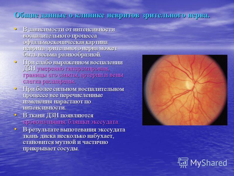 Общие данные о клинике невритов зрительного нерва. В зависимости от интенсивности воспалительного процесса офтальмоскопическая картина неврита зрительного нерва может быть весьма разнообразной. В зависимости от интенсивности воспалительного процесса