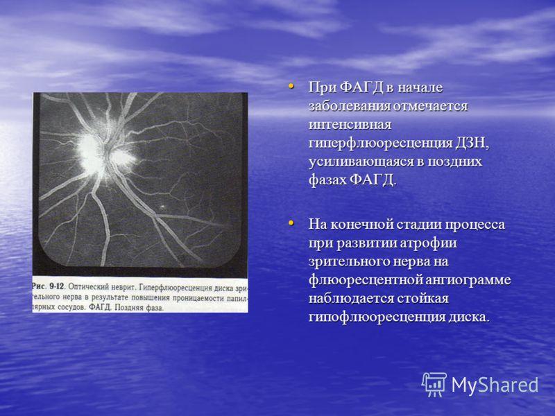 При ФАГД в начале заболевания отмечается интенсивная гиперфлюоресценция ДЗН, усиливающаяся в поздних фазах ФАГД. При ФАГД в начале заболевания отмечается интенсивная гиперфлюоресценция ДЗН, усиливающаяся в поздних фазах ФАГД. На конечной стадии проце