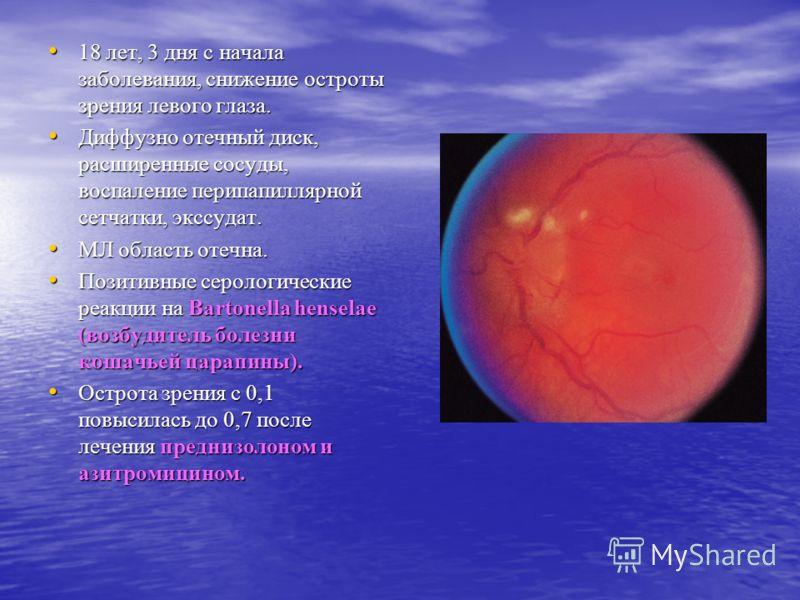 18 лет, 3 дня с начала заболевания, снижение остроты зрения левого глаза. 18 лет, 3 дня с начала заболевания, снижение остроты зрения левого глаза. Диффузно отечный диск, расширенные сосуды, воспаление перипапиллярной сетчатки, экссудат. Диффузно оте