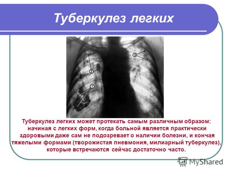 Туберкулез легких Туберкулез легких может протекать самым различным образом: начиная с легких форм, когда больной является практически здоровыми даже сам не подозревает о наличии болезни, и кончая тяжелыми формами (творожистая пневмония, милиарный ту