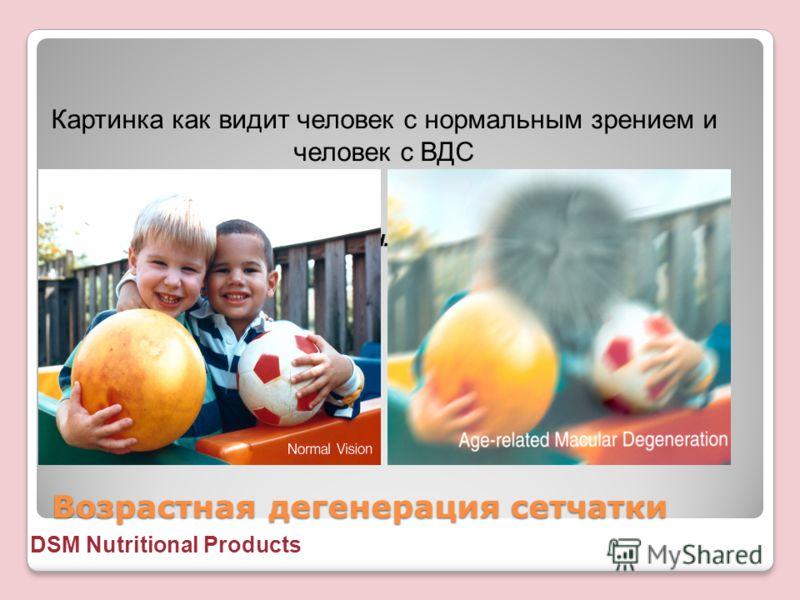 Возрастная дегенерация сетчатки Картинка как видит человек с нормальным зрением и человек с ВДС DSM Nutritional Products