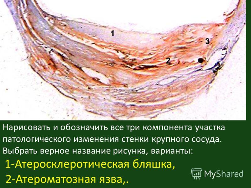 Нарисовать и обозначить все три компонента участка патологического изменения стенки крупного сосуда. Выбрать верное название рисунка, варианты: 1-Атеросклеротическая бляшка, 2-Атероматозная язва,. 2 3 1