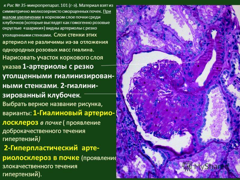 к Рис 35-микропрепарат. 101 (г-э). Материал взят из симметрично мелкозернисто сморщенных почек. При малом увеличении в корковом слое почки среди клубочков (которые выглядят как гомогенно розовые округлые «шарики») видны артериолы с резко утолщенными
