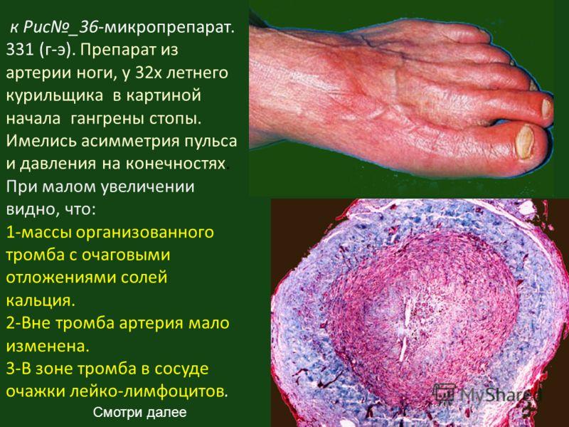 к Рис_36-микропрепарат. 331 (г-э). Препарат из артерии ноги, у 32х летнего курильщика в картиной начала гангрены стопы. Имелись асимметрия пульса и давления на конечностях. При малом увеличении видно, что: 1-массы организованного тромба с очаговыми о