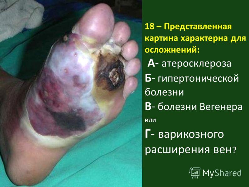 18 – Представленная картина характерна для осложнений: А- атеросклероза Б- гипертонической болезни В- болезни Вегенера или Г- варикозного расширения вен ?