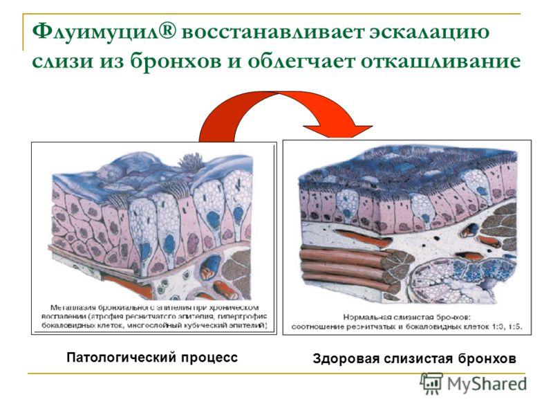 Флуимуцил® восстанавливает эскалацию слизи из бронхов и облегчает откашливание Здоровая слизистая бронхов Патологический процесс