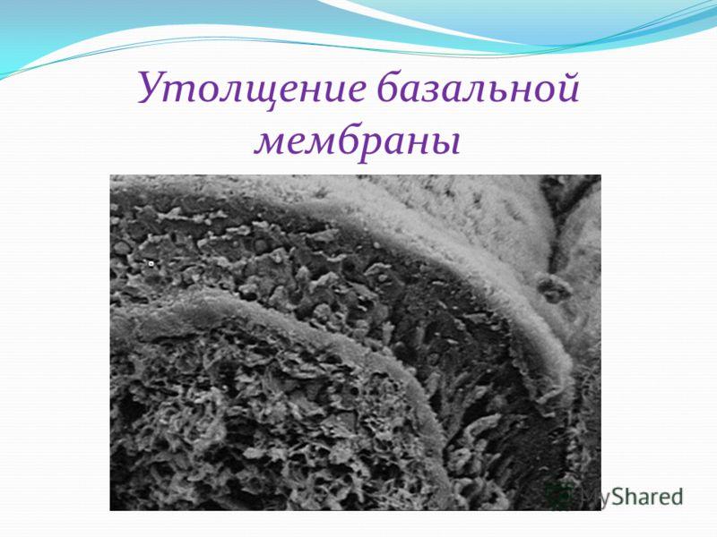 Утолщение базальной мембраны