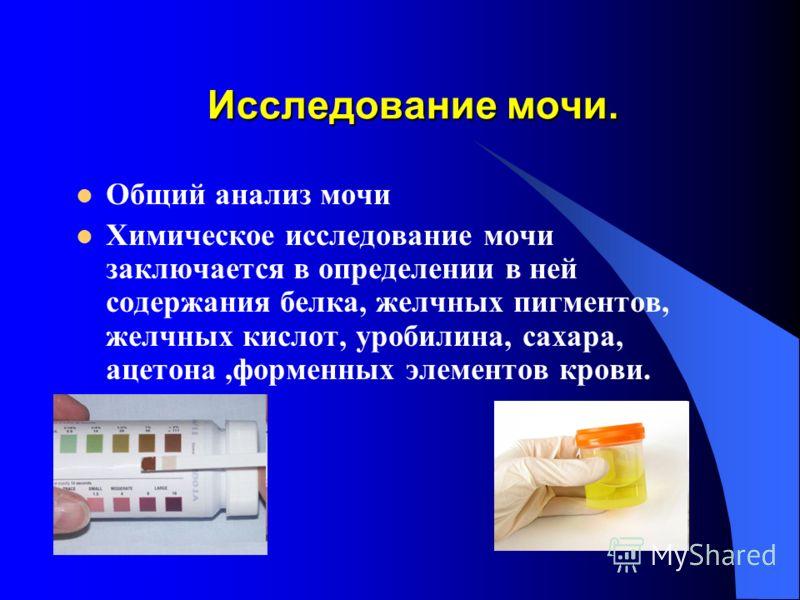 Исследование мочи. Общий анализ мочи Химическое исследование мочи заключается в определении в ней содержания белка, желчных пигментов, желчных кислот, уробилина, сахара, ацетона,форменных элементов крови.