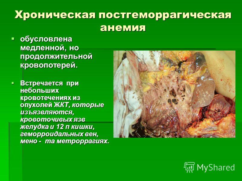 Хроническая постгеморрагическая анемия обусловлена медленной, но продолжительной кровопотерей. обусловлена медленной, но продолжительной кровопотерей. Встречается при небольших кровотечениях из опухолей ЖКТ, которые изъязвляются, кровоточивых язв жел