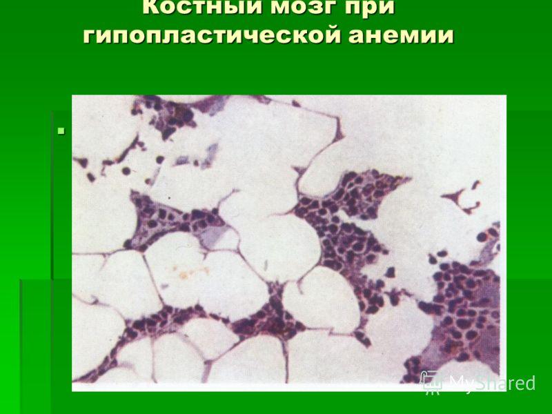 Костный мозг при гипопластической анемии панмієлофтізм.JPG панмієлофтізм.JPG панмієлофтізм.JPG