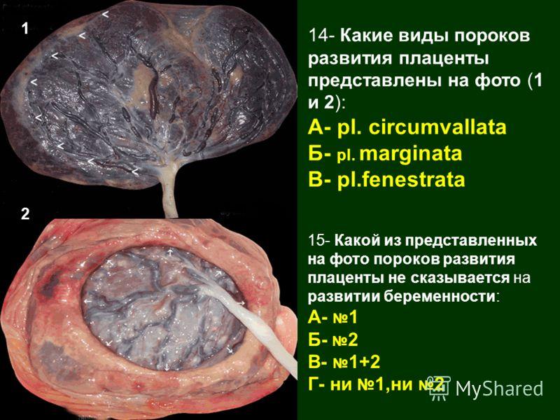 14- Какие виды пороков развития плаценты представлены на фото (1 и 2): А- pl. circumvallata Б- pl. marginata В- pl.fenestrata 15- Какой из представленных на фото пороков развития плаценты не сказывается на развитии беременности: А- 1 Б- 2 В- 1+2 Г- н