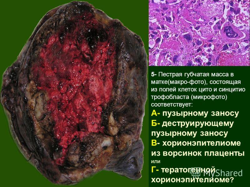 5- Пестрая губчатая масса в матке(макро-фото), состоящая из полей клеток цито и синцитио трофобласта (микрофото) соответствует: А- пузырному заносу Б- деструирующему пузырному заносу В- хорионэпителиоме из ворсинок плаценты или Г- тератогенной хорион
